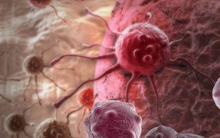 Признаки раковой интоксикации и ее лечение