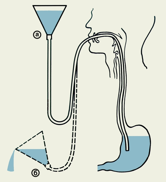 Промывание желудка в условиях стационара