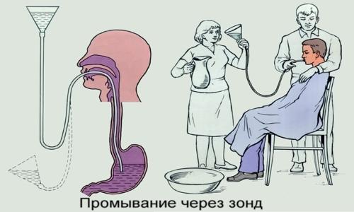 Промывание желудка ребенку через зонд