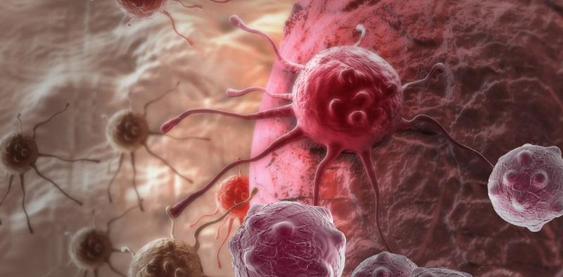 раковая интоксикация